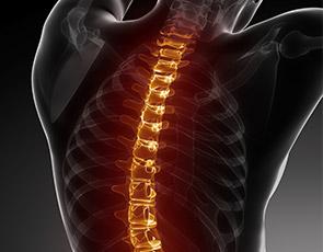 Back pain visual